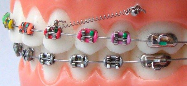 Назначение скелетной опоры в ортодонтии и что ожидается при использовании