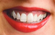 Кривая челюсть как исправить