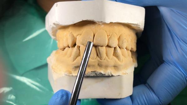 Смещение средней линии зубов из-за брекетов