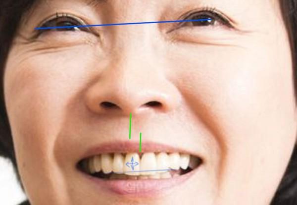 Чем опасно смещение средней линии зубов