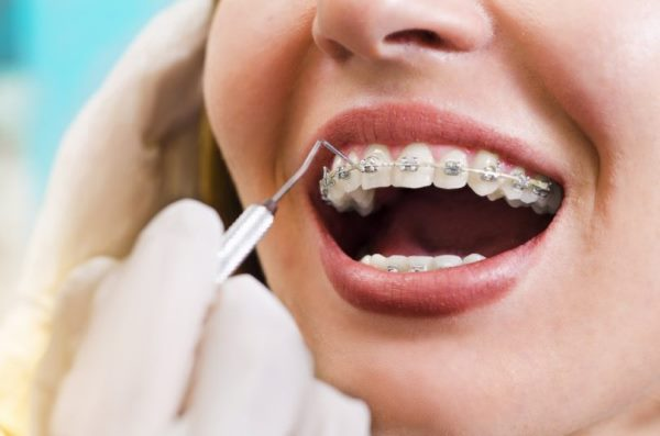 Альтернатива брекетам для выравнивания зубов