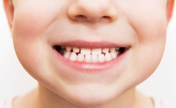 Как проверить прикус зубов