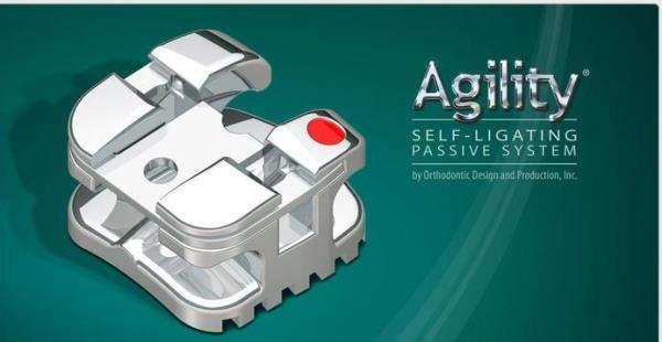 Фото модели Agility