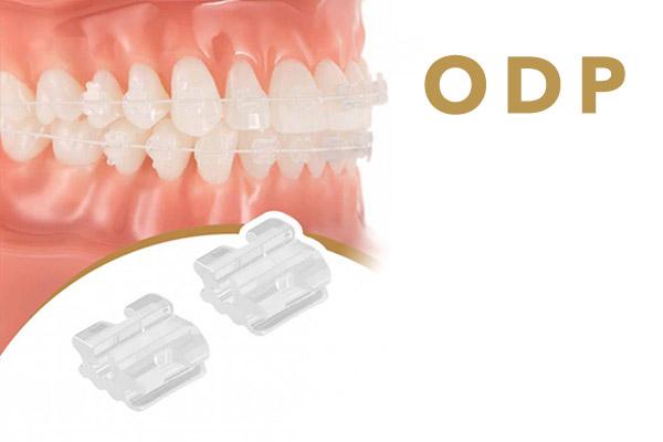 Характеристики ODP брекетов