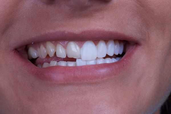 Использование виниров в стоматологии для исправления прикуса