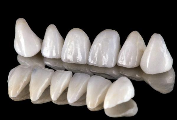 Исправление прикуса винирами стоматология