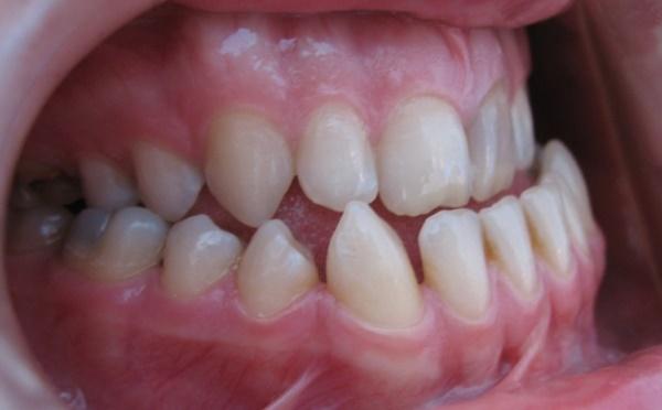 Способы лечения орального положения зубов