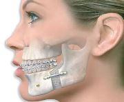 Проведение ортогнатической операции