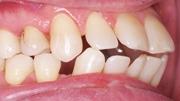 Лечение протрузии зубов