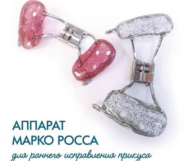 Аппарат марко росса ортодонтия