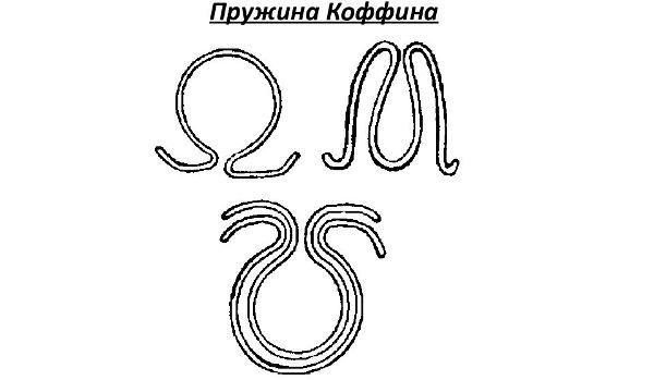 Разновидности пружины Коффина