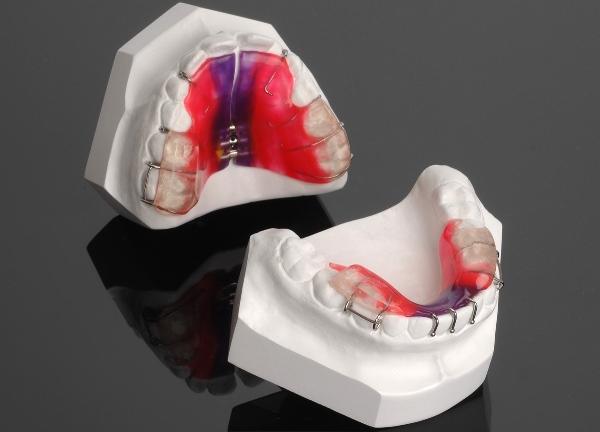 Назначение элементов ортодонтических аппаратов