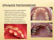 Оральное положение зубов лечение