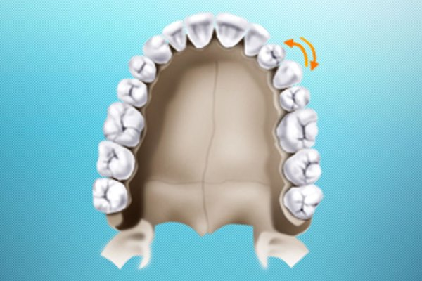 Причины развития транспозиции зуба
