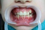 Высокое низкое положение отдельных зубов