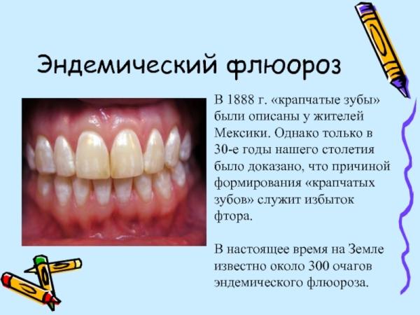 Эндемическая крапчатость эмали зубов