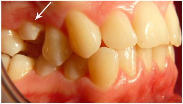 Методы лечения импактных зубов