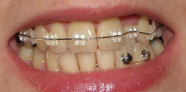 Как работают копки, используемые в ортодонтии для коррекции положения зубов