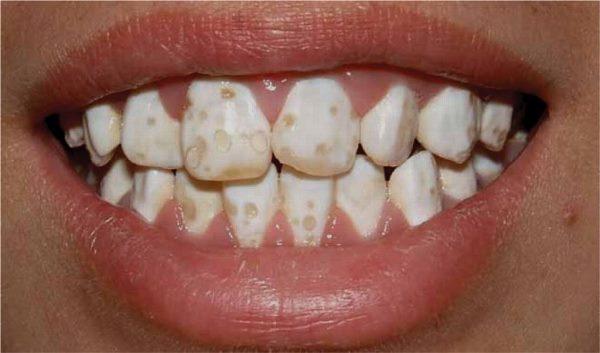 Тактика лечения крапчатых зубов