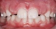 Персистентные зубы