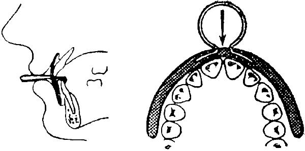 Показания к использованию пластинки Кербитца