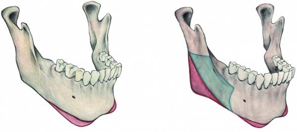 Этапы проведения мандибулопластики
