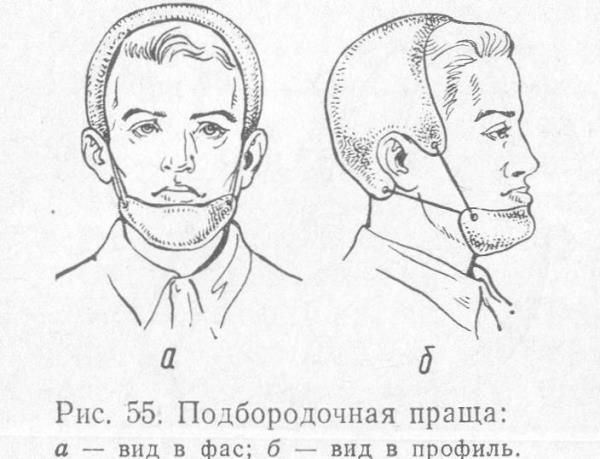 Пращевидная повязка на нижнюю челюсть как сделать