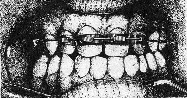 Ааппарат Джонсона — назначение в ортодонтии