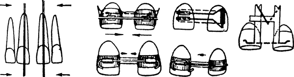 Аппарат коркгауза ортодонтия