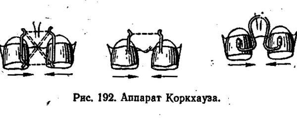 Показания к установке аппарата Коркгауза