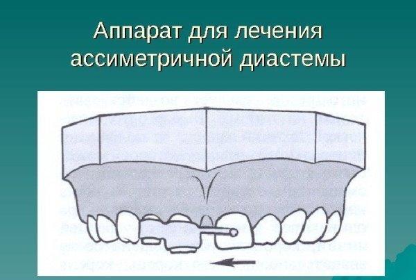 Аппарат коркгауза