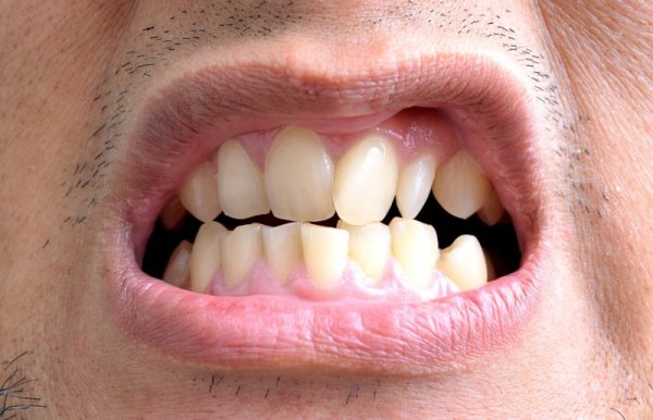 Ортодонтический аппарат джонсона фото