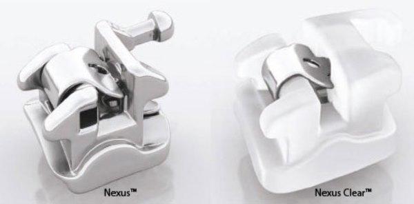Показания к установке брекетов Nexus