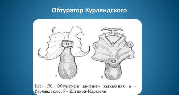 Изготовление плавающего обтуратора кеза