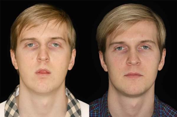 Влияние прикуса на черты лица