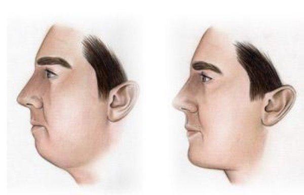 Влияние прикуса на овал лица