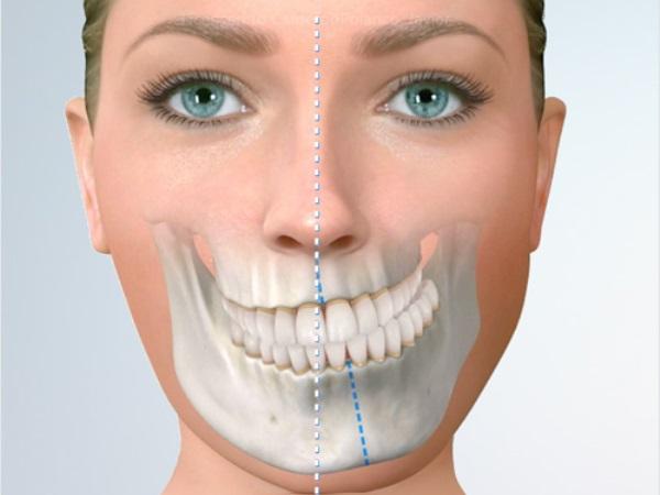Причины асимметрии лица