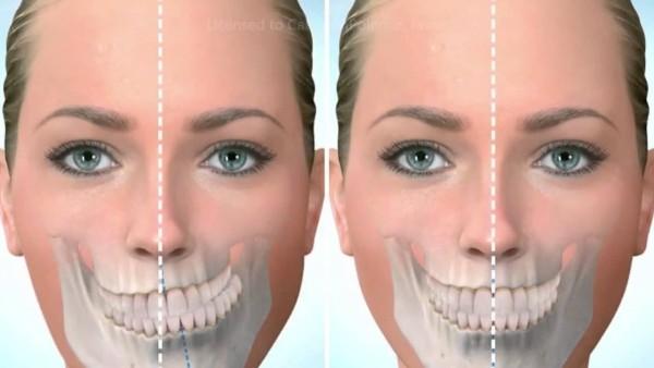Исправление асимметрии челюсти у взрослых