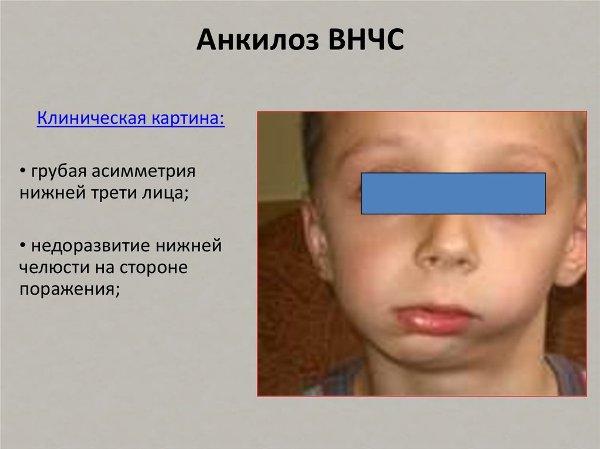 Операция на челюсть для исправления асимметрии лица