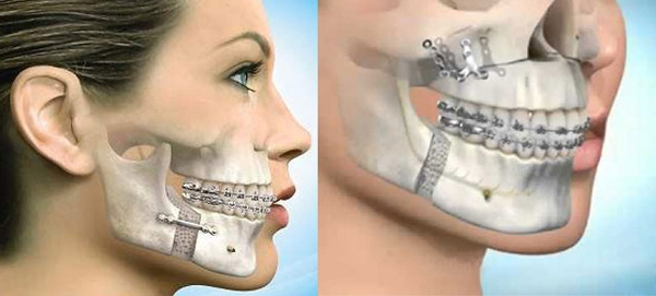 Исправление асимметрии челюсти
