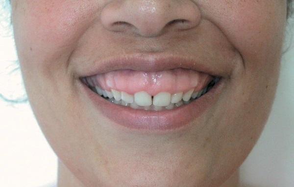 Короткие зубы у женщины