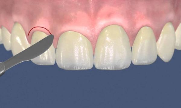 Короткие зубы у ребенка