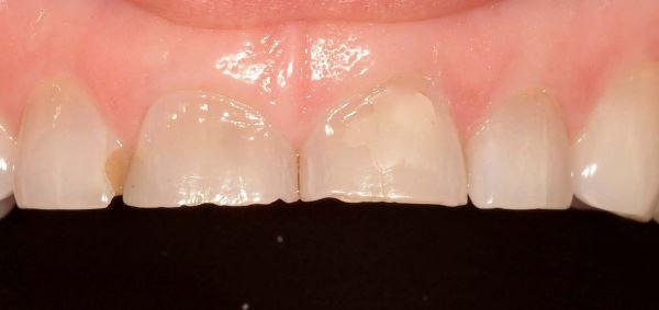 Как понять короткие зубы у ребенка или нет