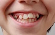 Что такое персистентные зубы
