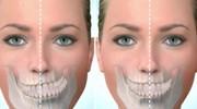 Асимметрия нижней челюсти