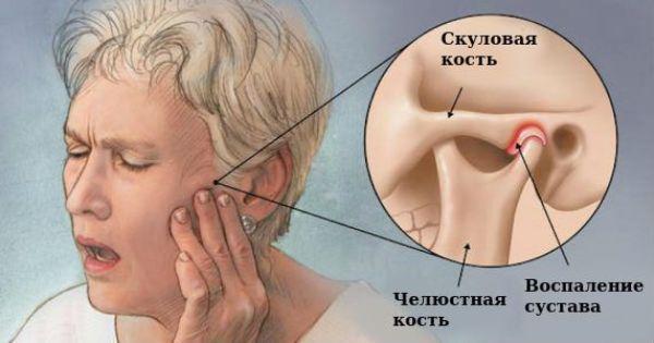 Болевая дисфункция височно-нижнечелюстного сустава мкб 10