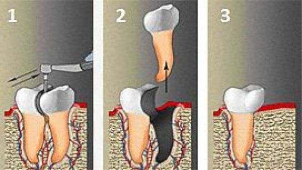Коронорадикулярная сепарация зуба