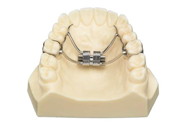 Расширение челюсти аппаратом hyrex