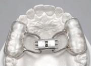 Аппарат Макнамара в ортодонтии
