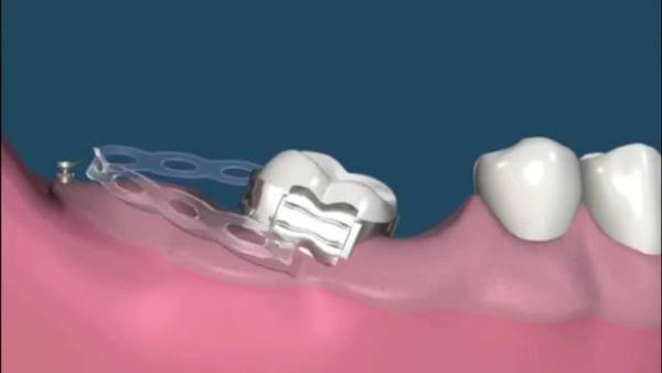 Микроимпланты в ортодонтии цены